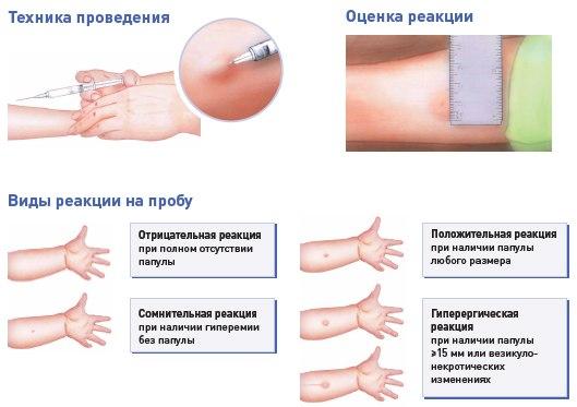 Манта прививка реакция норма у детей фото 3